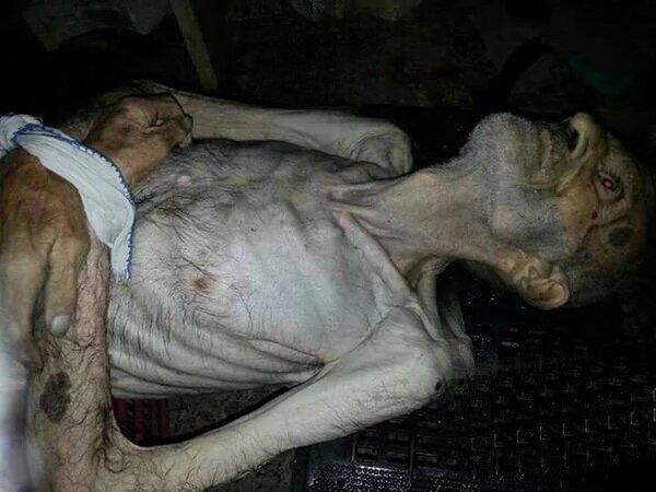 Madaya Syria Famine - 3